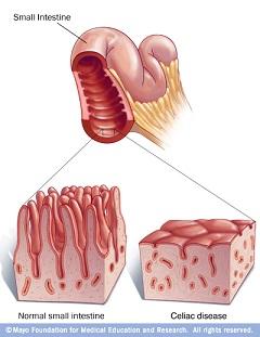 Slika crijevnih resica