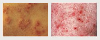 Dermatits hepertiformis slika
